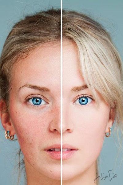 هیدرودرمی یا آبرسانی به پوست - یک پوست روشن یک پوست تیره
