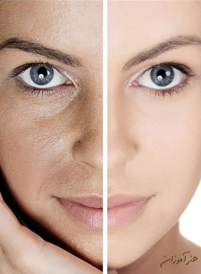 هیدرودرمی یا آبرسانی به پوست پوست روشن و پوشت تیره