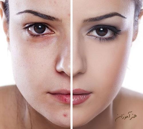 هیدرودرمی یا آبرسانی به پوست پوست دارای جوش و لک و پوست صاف