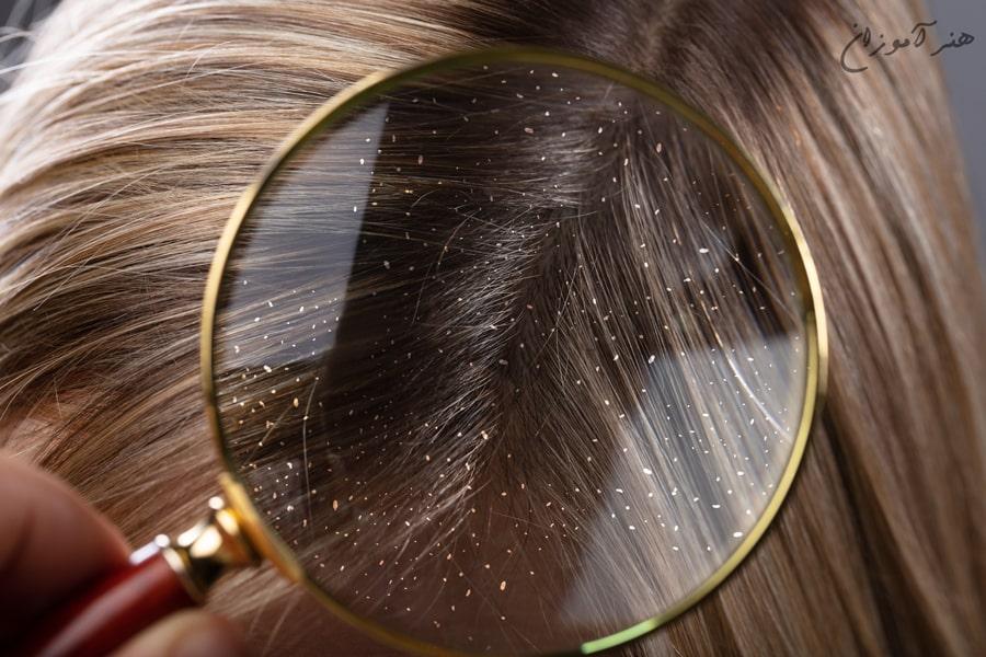 درمان شوره سر با شانه چوبی